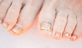 Onychomycosis - Fungal Nail Infection